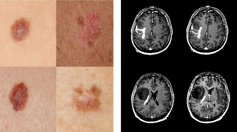 Why Skin Lesions are Peanuts and Brain Tumors Harder Nuts